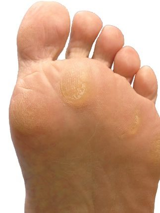 Painful callus on bottom of foot