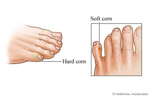 soft and hard corn appearance